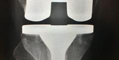 Box 2 hip&knee