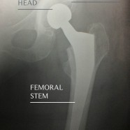 X Ray Hip Replacement
