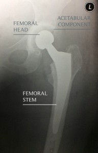 x ray hip replacenment